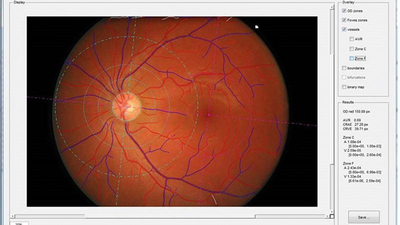 Retinal screening for dementia