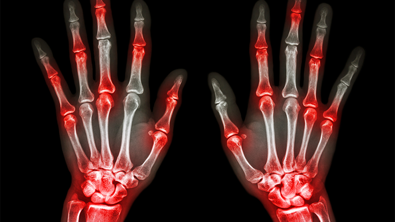 Recognising the symptoms: diagnosing and treating gout