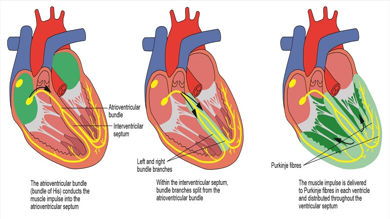 Heart block as a complication of acute myocardial infarction: the anatomical and physiological mechanisms