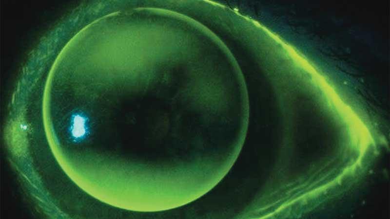 Rigid gas permeable lenses – interactive