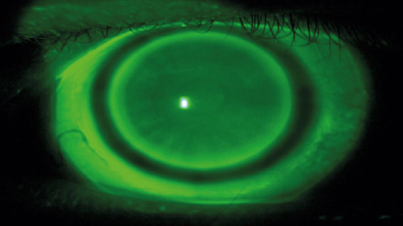 Guide to hybrid contact lenses