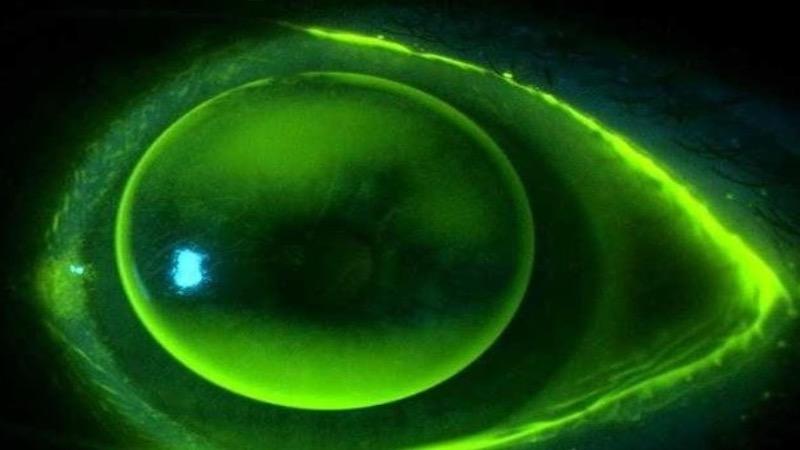 Essential contact lens practice – VRICS 2
