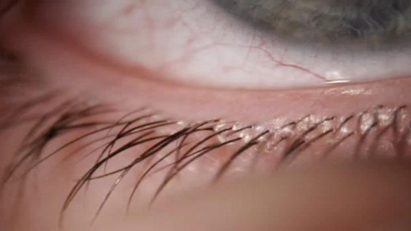 Lid margin health: the forgotten part of contact lens discomfort?