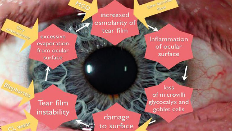 The ocular implications  of statins