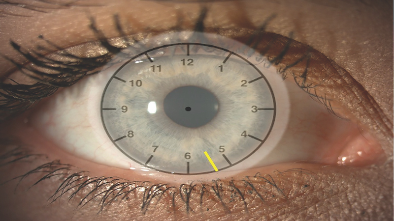 Essential contact lens practice 8: Soft toric contact lens fitting