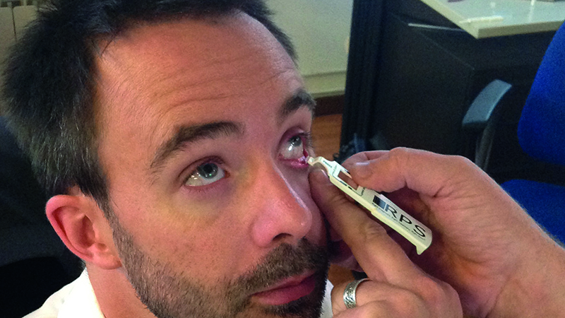 TFOS Dry Eye Workshop II – part two