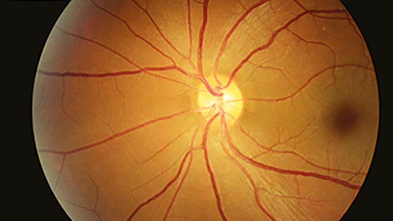 Diabetic retinopathy grading VRICS - exercise B
