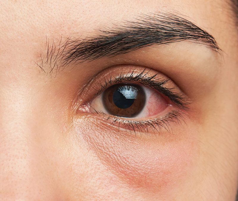 Red eye management: Part 1 Painless Red Eye (Optometrists, Dispensing Opticians and Therapeutic Optometrists)