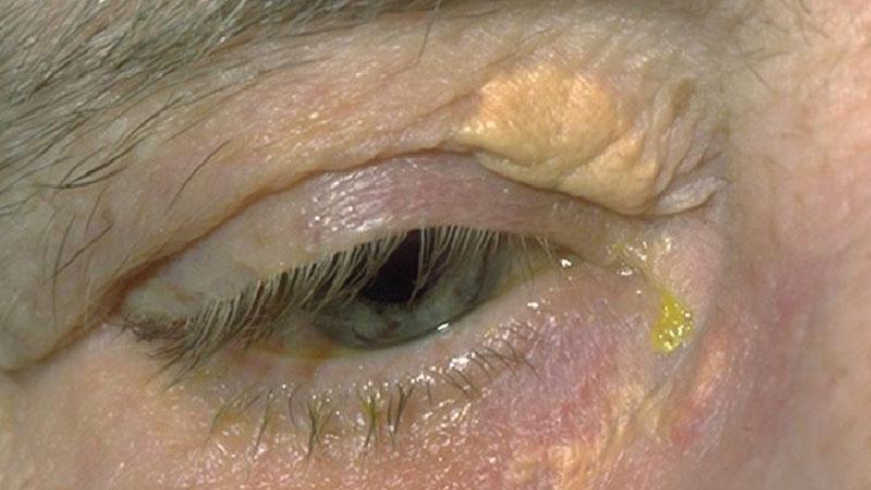 Geriatric optometry – part 1