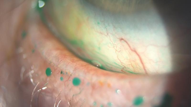 Contact lens discomfort