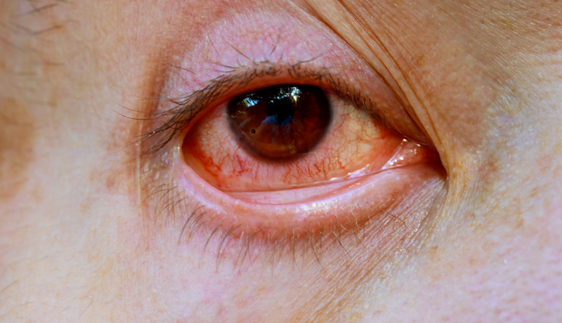 Red eye management   Part 1 – Painless red eye (For Contact Lens Opticians only)