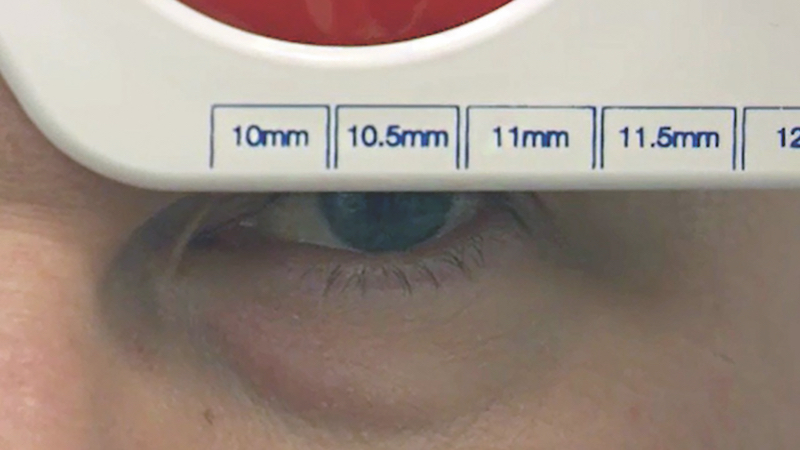 Essential contact lens practice 9: Rigid gas permeable contact lens fitting