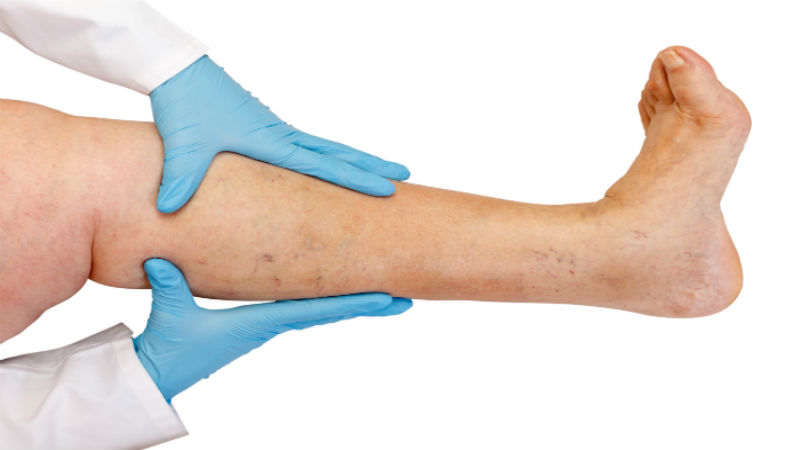 The development of a 'wet leg' pathway for chronic oedema