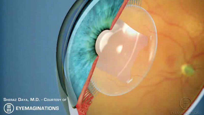 Phakic lenses versus refractive lens exchange – evaluating the  best option for your patients