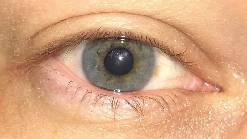 TFOS Dry Eye WorkShop II – part one