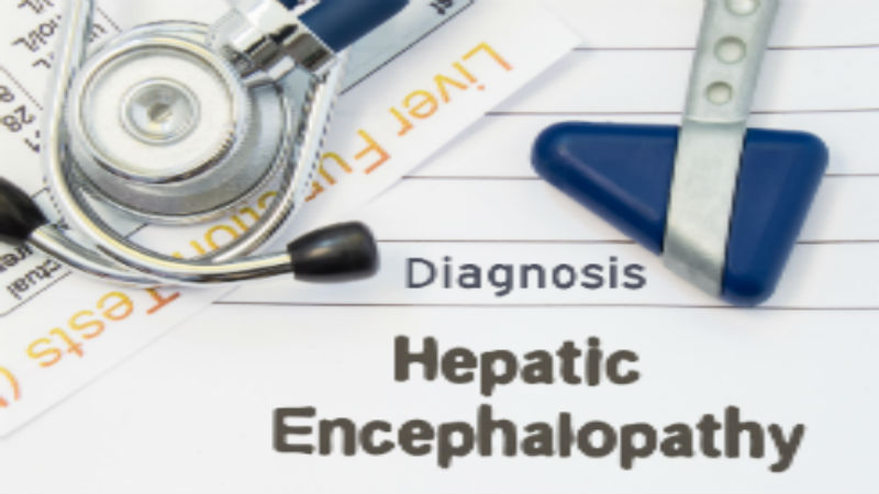 Hepatic Encephalopathy: Causes and Health-Related Burden