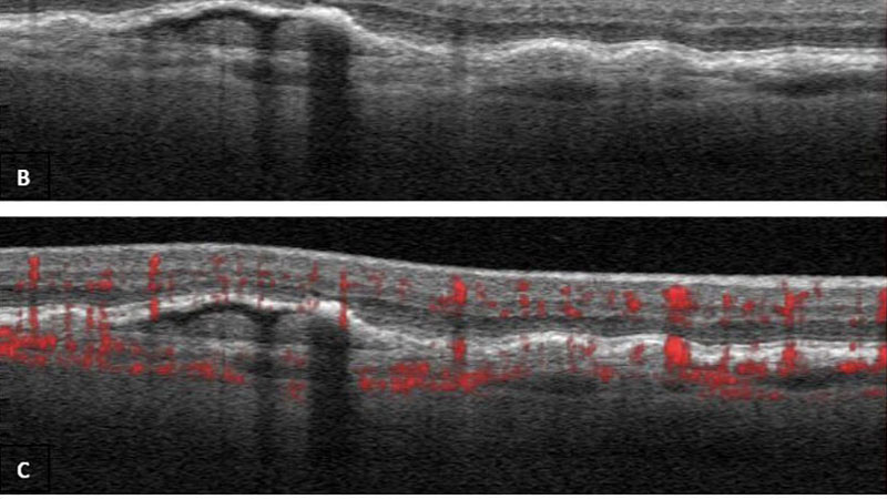 Optical coherence tomography angiography (OCTA) – a review