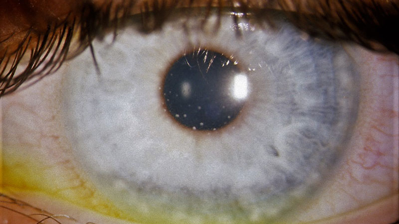 Paediatric eye care part 2: Uveitis