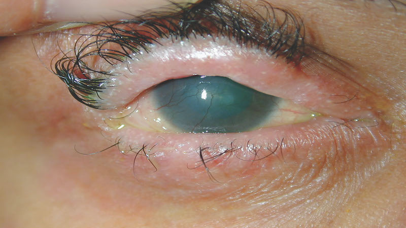 Ocular side effects of systemic drugs 4 – Anti-infectives, chemotherapy, vitamins and herbal supplements