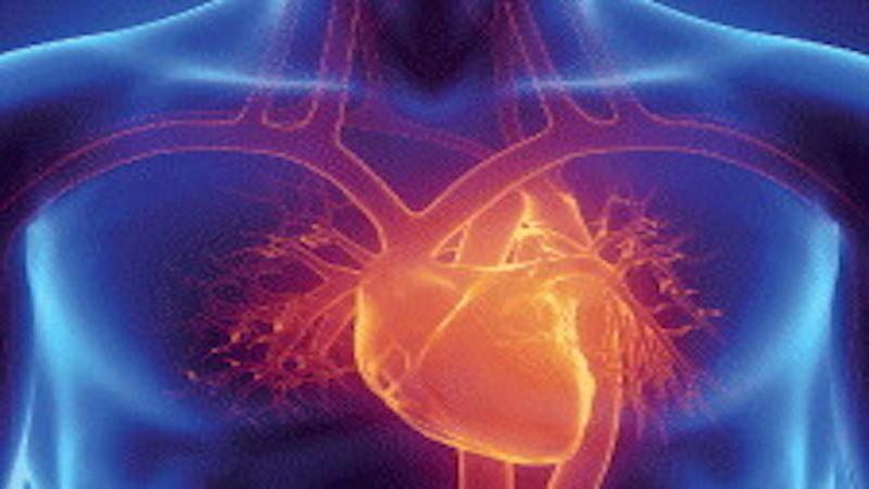 Non-traumatic chest pain: pericarditis