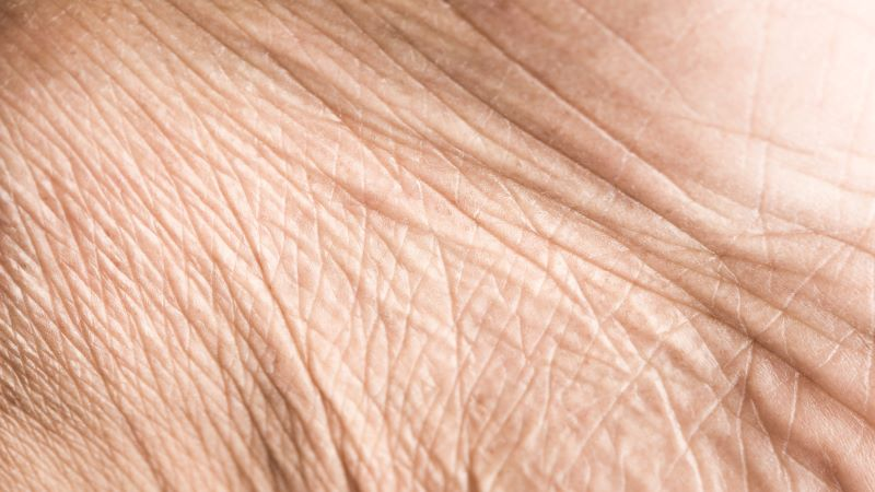 Skin conditions in older people: assessment and management
