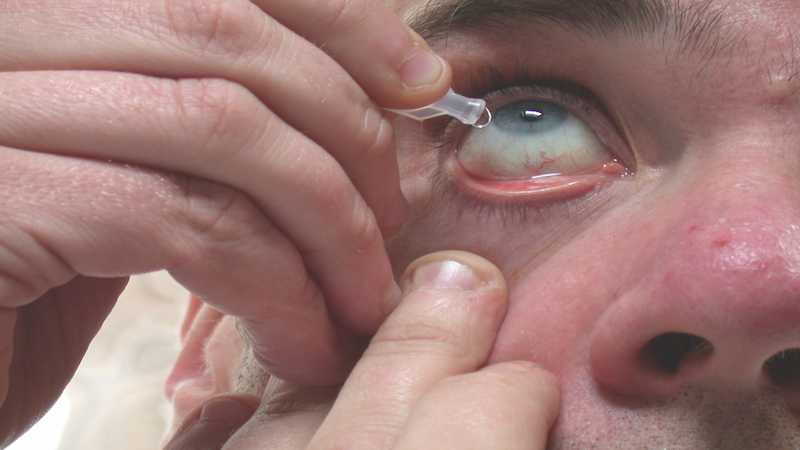 Systemic side effects of ocular medication: Diagnostic drugs – part 1