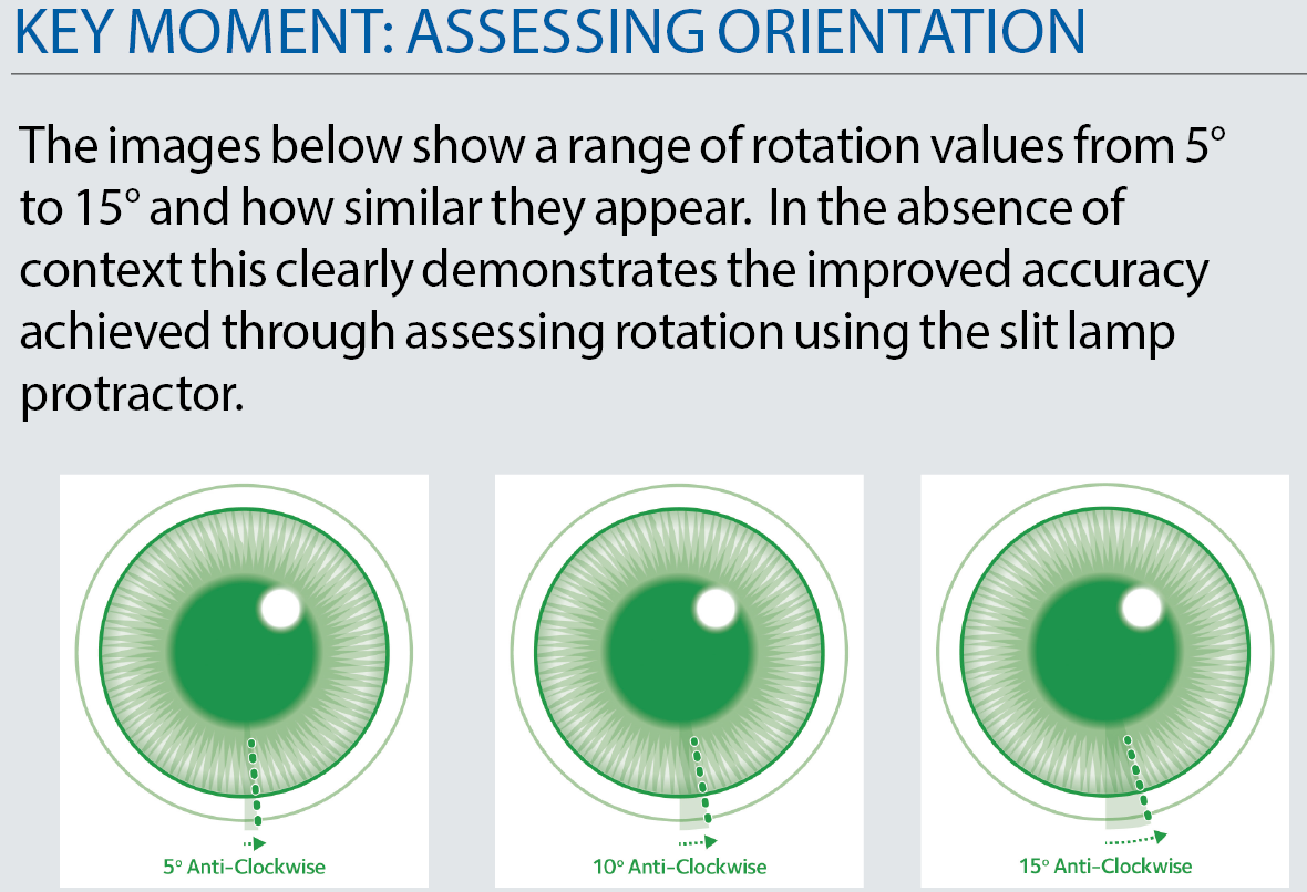 Optician 4 assessing the fit axis adjustment nvjuhfo Image collections