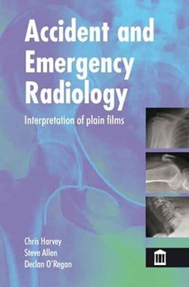 Picture of Accident and Emergency Radiology: Interpretation of Plain Films